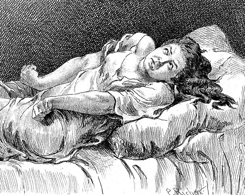 """L0018205 Richer """"Etudes cliniques"""", 1881: tetanism"""
