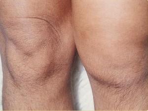 SOA-arthritis