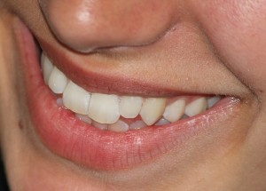 smile-665433_640